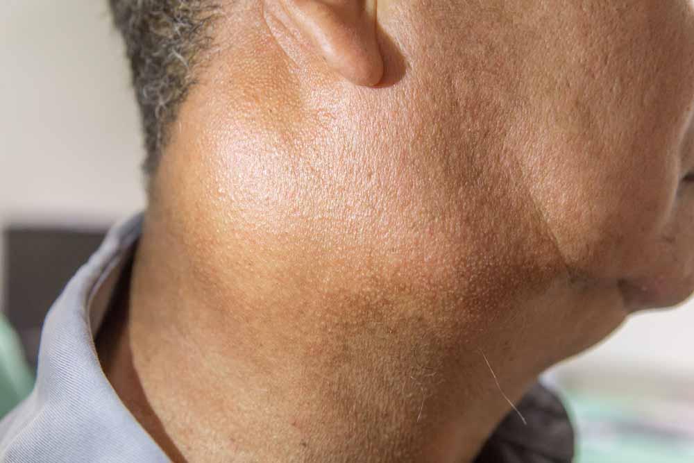 Lymphoreticular (Lymphoid) System
